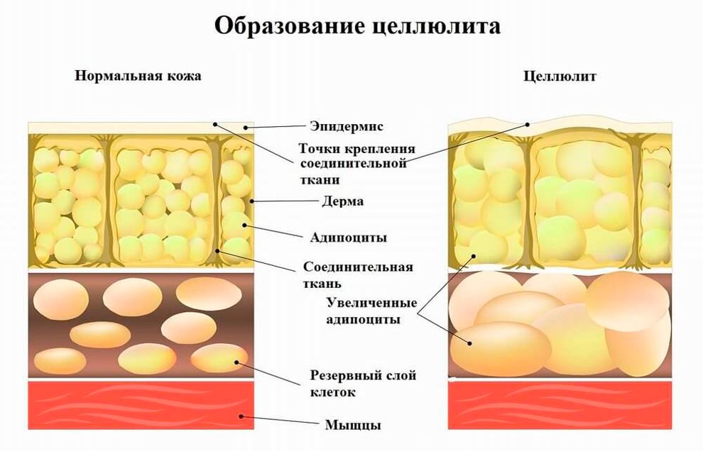 Отличие нормальной кожи и с целлюлитом